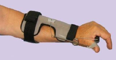 Improves R. O. M. at wrist, post fracture, radial palsy. Easy to shape aluminum frame for custome fit. Coiled spring at wrist produces dynamic wrist palmer arch, removable thumb outrigger. Breathable, removable liner. Optional wrist strap included.